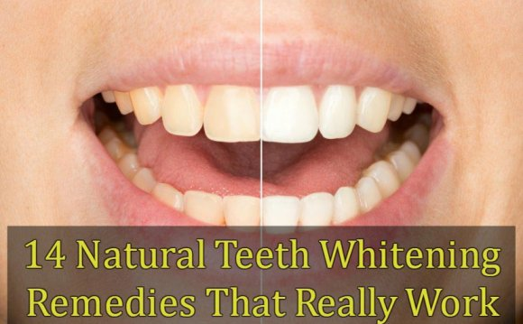 14 Natural Teeth Whitening