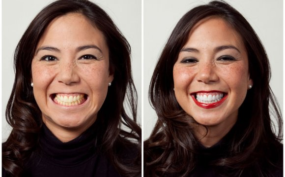 Teethwhitening-before-after
