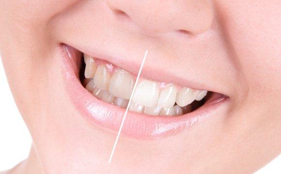 Whiten Teeth what the best