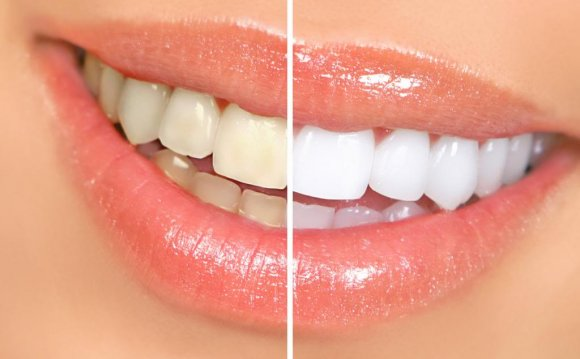 Cheap teeth whitening products