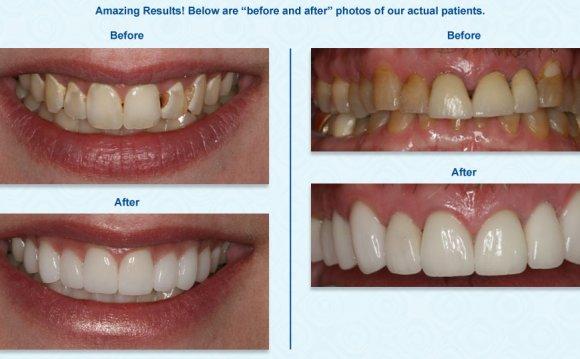 Dentistry Bountiful UT