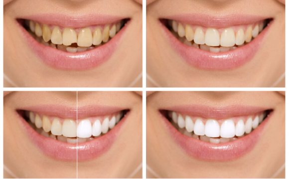 Take-Home Teeth Whitening Kits