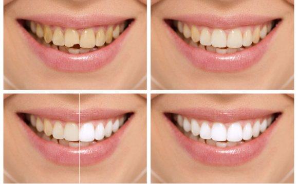 Take-Home Teeth Whitening Kits