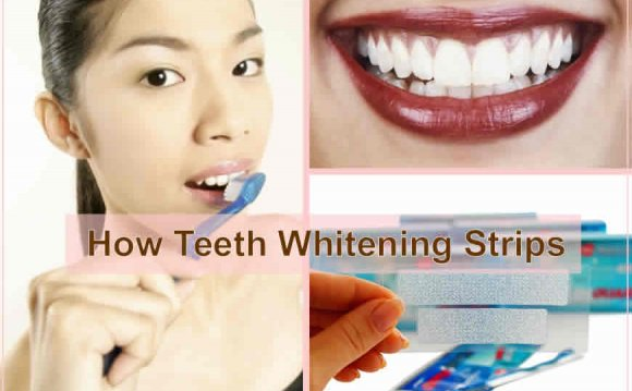 How Teeth Whitening Strips