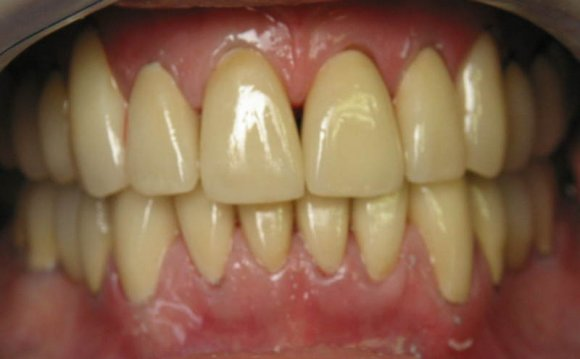 Yellow teeth / PicHelp