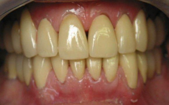 Yellow teeth / PicHelp