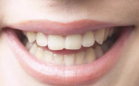How to Whiten Teeth With
