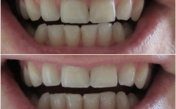 IWhite Instant Teeth Whitening