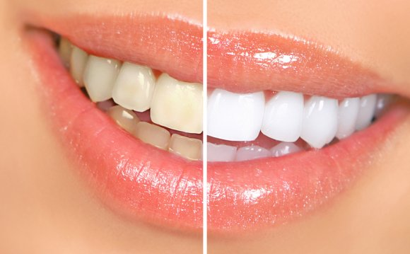 Mouth and teeth before and