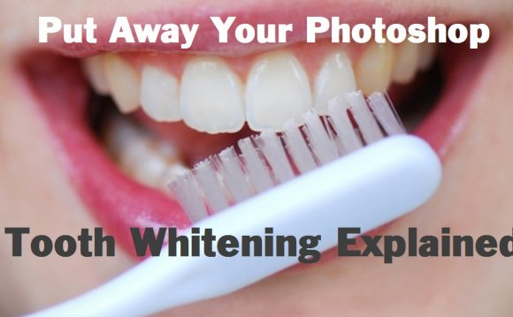 Three Types of Teeth Whitening