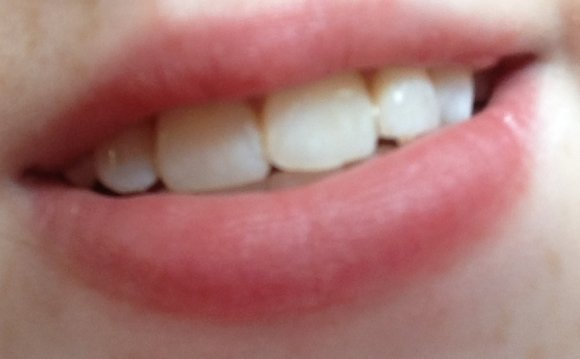 Picture of my Whitened Teeth