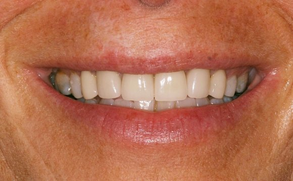 Crowns with Crown Lengthening
