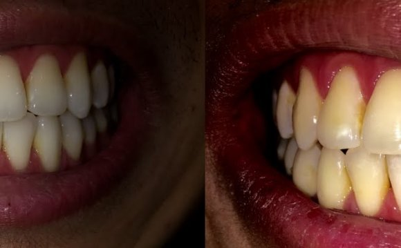 Teeth Whitening - 30 Day