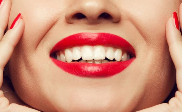 Stuart Teeth Whitening