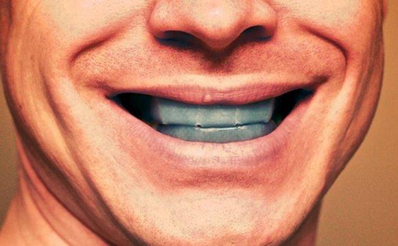 Teeth whitening gone wrong