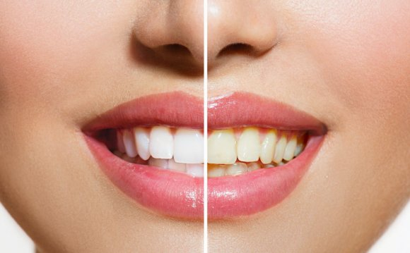 Image result for yellow teeth
