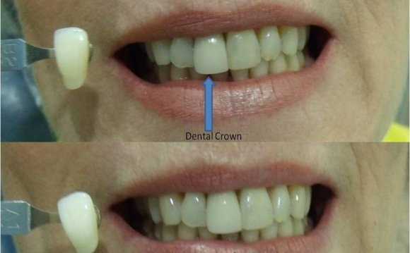 Teeth Whitening Results cannot