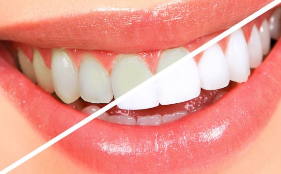 How to whitening teeth at home overnight?