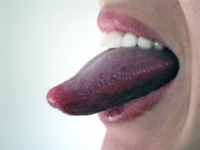 3. Clean your tongue