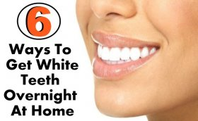 6 Simple Ways To Get White Teeth Overnight At Home