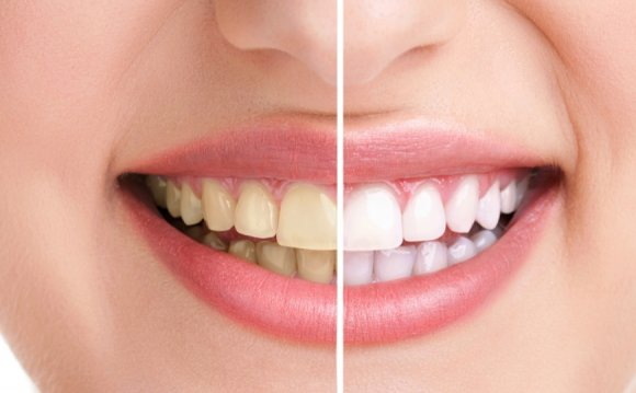 Natural Home teeth whitening