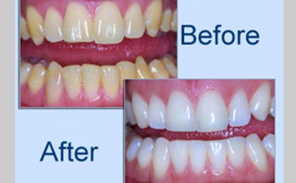 Zoom! Teeth Whitening Belfast