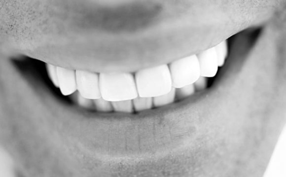 Best ways to whiten teeth fast