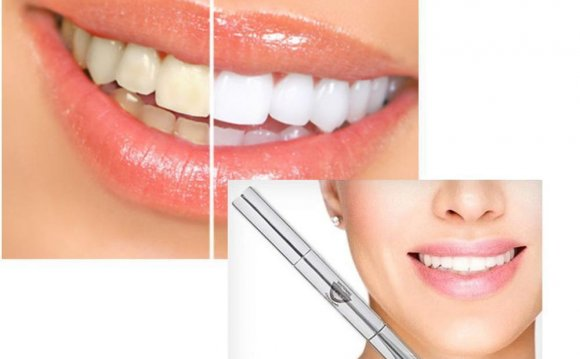 Smart Smile Teeth Whitening Reviews