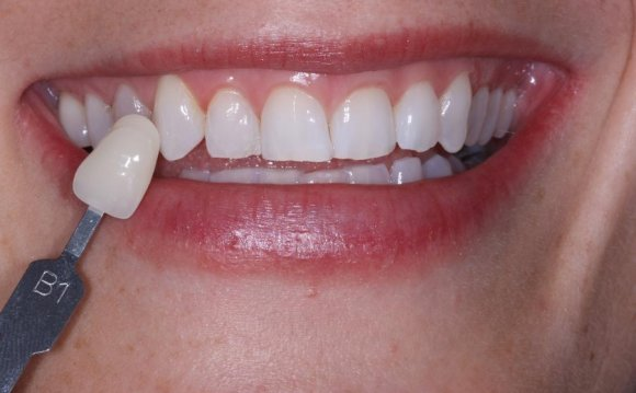 Cost of Teeth whitening trays from dentist