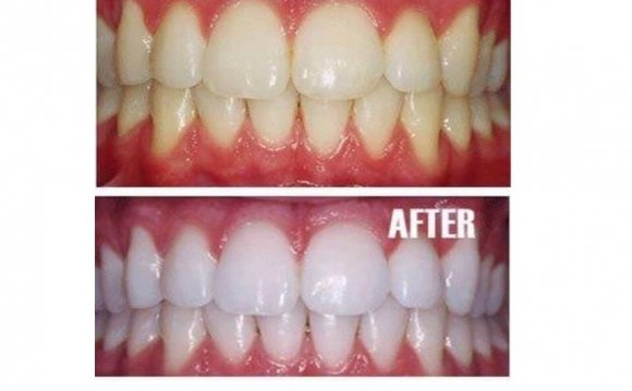 Does baking soda whiten your teeth