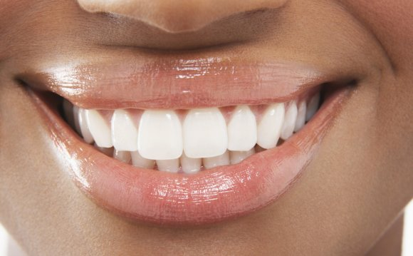 Teeth whitening trays before and after