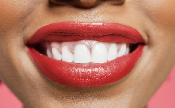 Teeth Whitening London Reviews