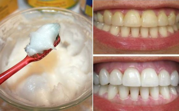 Homemade teeth Whitener fast