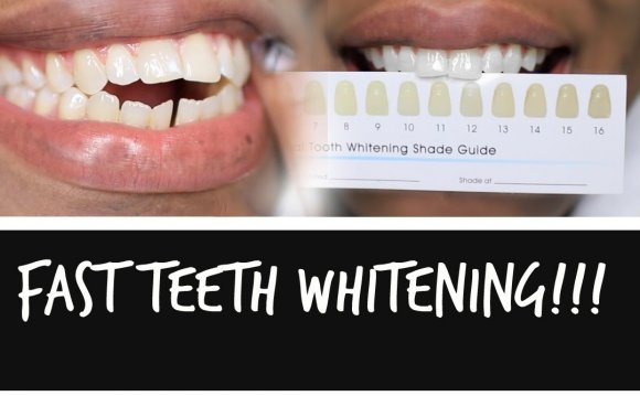 Tips to whitening teeth fast