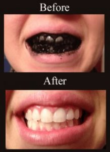 how to whiten teeth naturally with charcoal