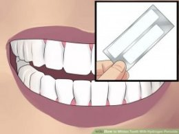 Image titled Whiten Teeth With Hydrogen Peroxide Step 3
