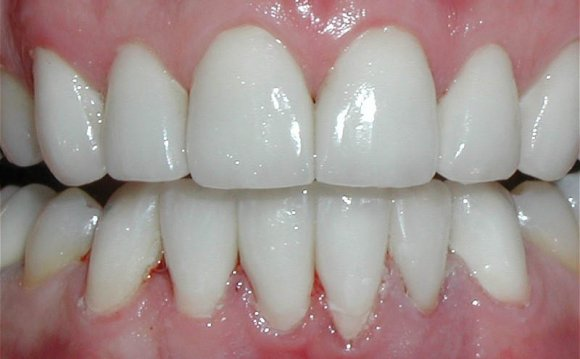 Side effects of Laser Teeth whitening
