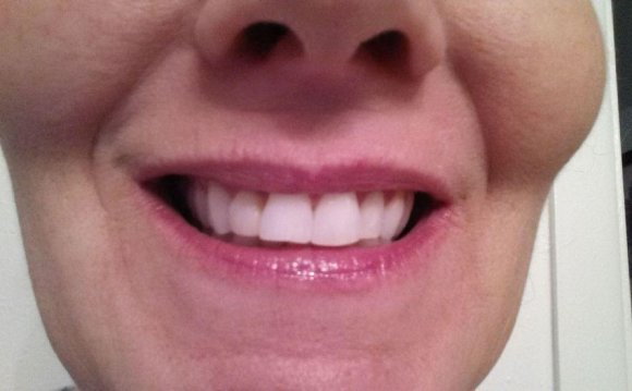 Pro light Teeth Whitening System Reviews
