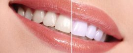 Memorial Square Dental | NE Calgary Teeth Whitening