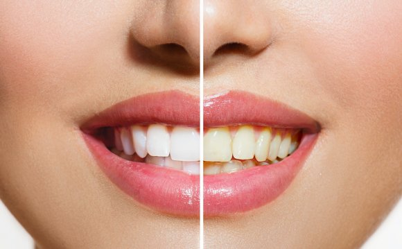 Teeth Whitening Pregnant