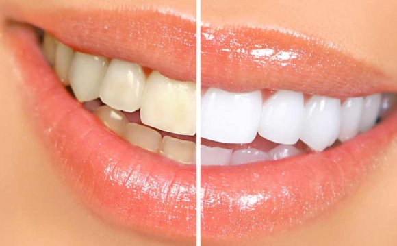 What Can whitening your teeth Fast?