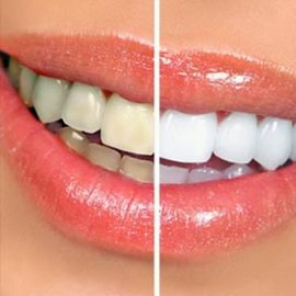 NE Calgary Teeth Whitening