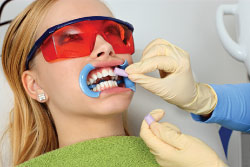 Professional In-Office teeth whitening.