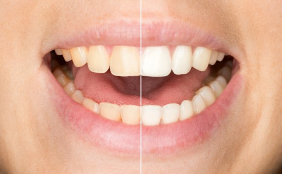 Professional Teeth Whitening Systems