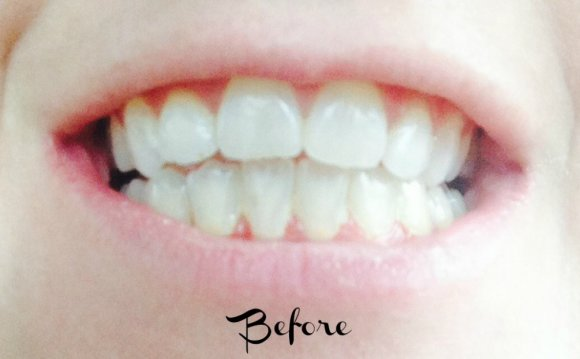 Professional Teeth Whitening results