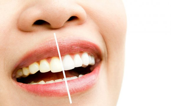 Can whitening strips damage teeth?