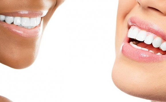 Professional Teeth Whitening prices