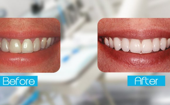 Laser Teeth Whitening Cost Treatment Teeth Whitening