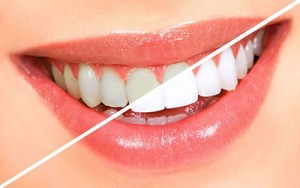 teeth whitening services in kirkland, wa