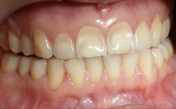 Does baking soda Whitening teeth